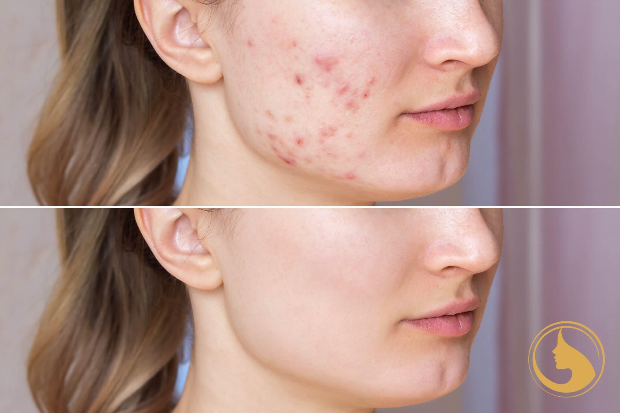 medical peel akne-gyulladt bőr-hegkezelés