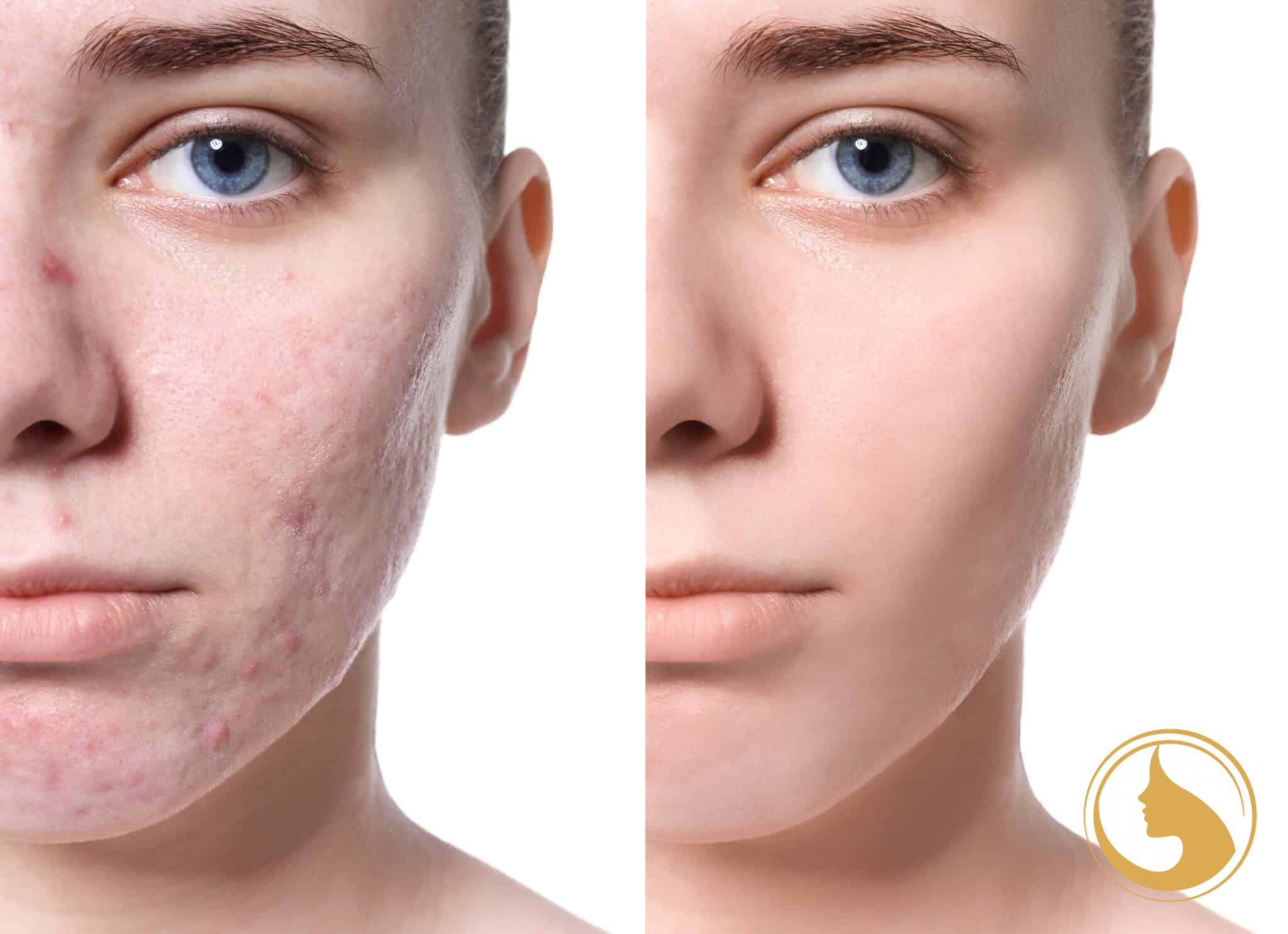 flash peel intenzív bőrmegújítás Extreme Beauty kozmetika