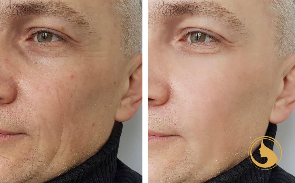 ipeptide mesofiller kozmetikai kezelés