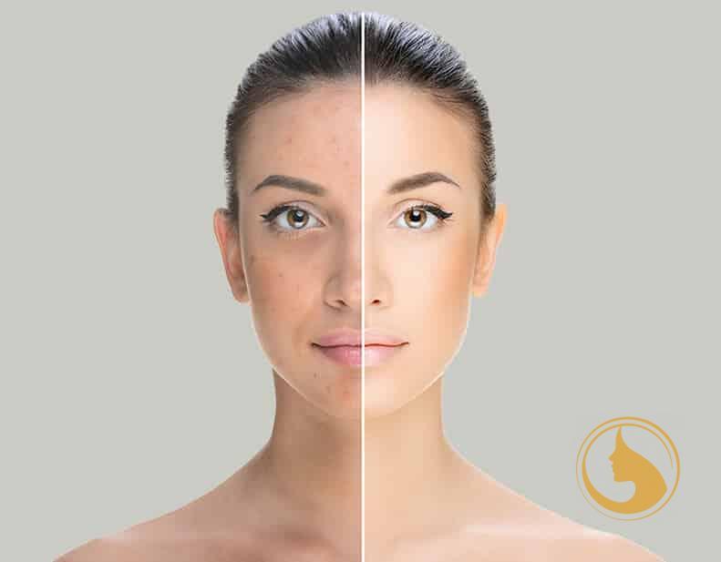 melano peel pigment halványító kezelés