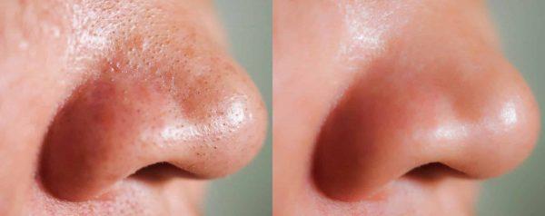hydrafacial mélytisztító arckezelés ultrahang terápiával Extreme Beauty kozmetika