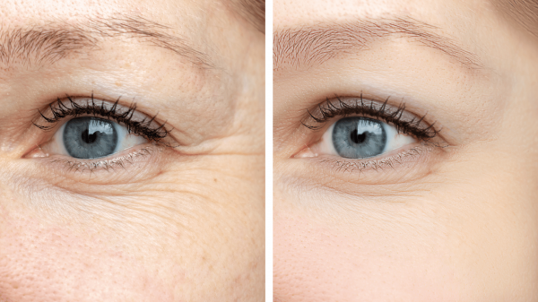 ipeptide eyecare Extreme Beauty kozmetika