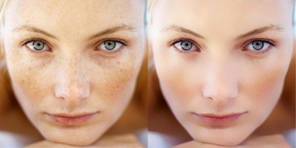 melano peel pigment halványító kozmetikai kezelés