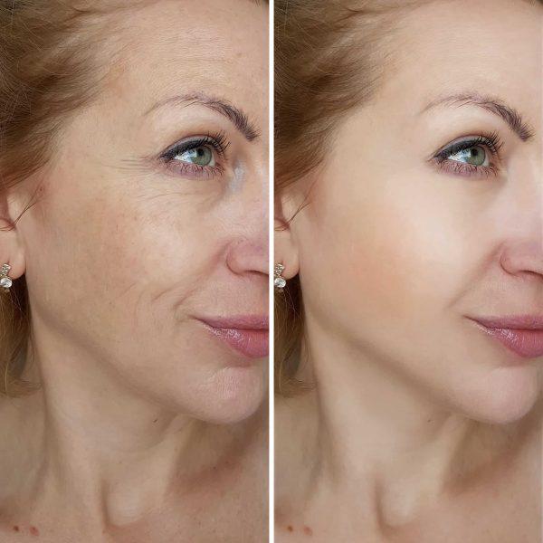mesopeptide bőrregenerálás és bőrmegújítás